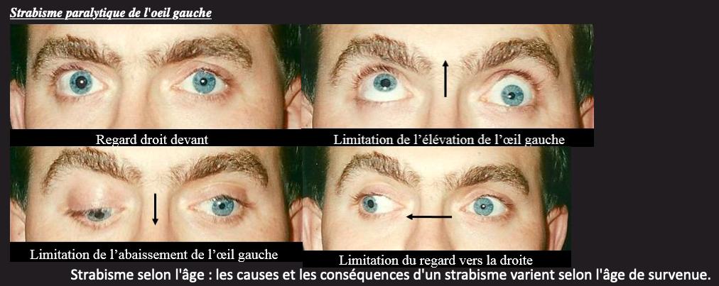 Ophtalmologie ales chirurgie du strabisme