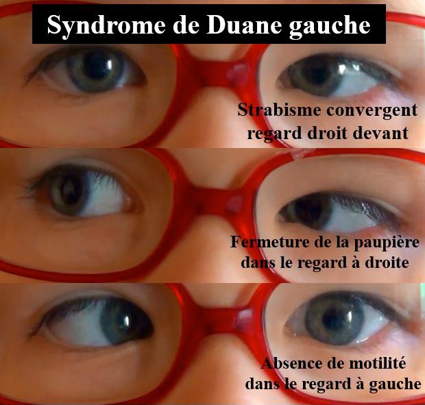 sYNDROME DE DUANE